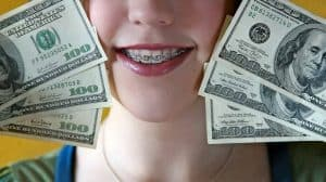 how to save money on braces